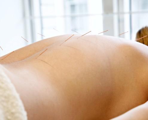 Kvinne som ligger på magen med akupunkturnåler i ryggen